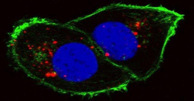 نظارت بر گسترش سلول های سرطانی با هوش مصنوعی