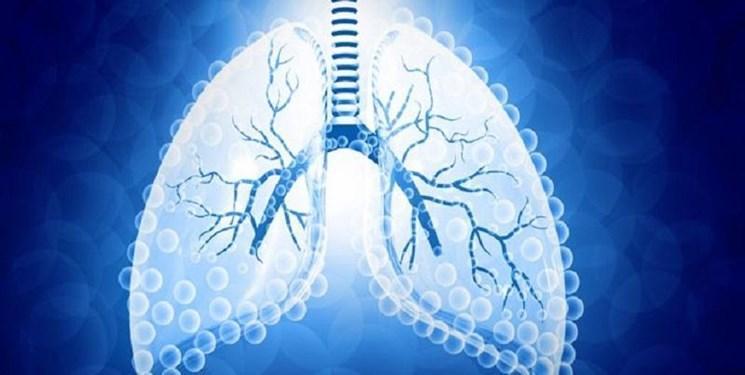رمدسیویر از آسیب ریه مبتلایان به کرونا جلوگیری می نماید